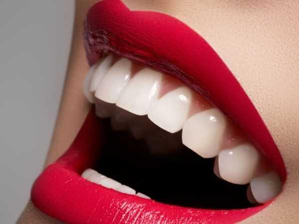 Знищать гарну посмішку: Названо продукти, шкодять здоров'ю зубів